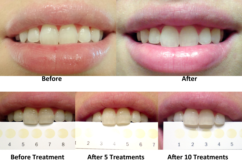 Teeth Whiteners Crest Crest Teeth Whitening Strips